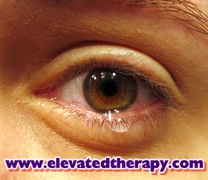 Hypnotherapy for Fears and Phobias in Newark